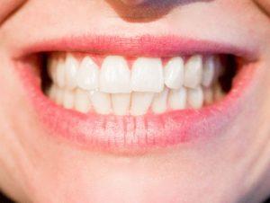 Mujer apretando los dientes
